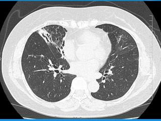 呼吸器疾患診断手順ガイド205・検査56・呼吸器common diseaseにおけ ...