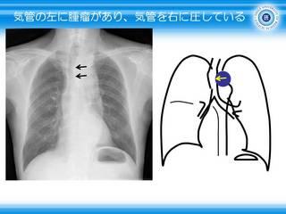11気管の左に腫瘤があり、気管を右に圧している.JPG