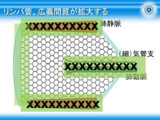 12リンパ管、広義間質が拡大する.jpg