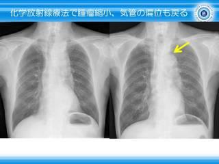 12化学放射線療法で気管の偏位も戻る.JPG