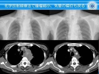 13化学放射線療法で気管の偏位も戻る.JPG