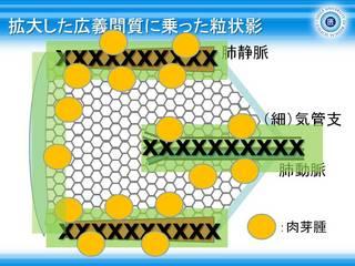 13拡大した広義間質に乗った粒状影.jpg