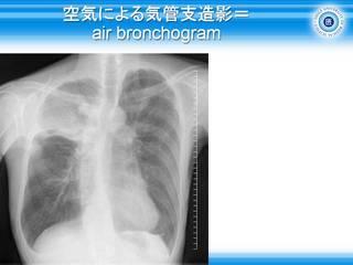 13空気による気管支造影=air bronchogram.jpg