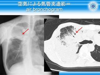 14空気による気管支造影=air bronchogram.jpg