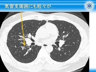15気管支周囲にも粒々が….jpg