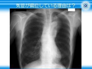 16気管が偏位している理由は.JPG