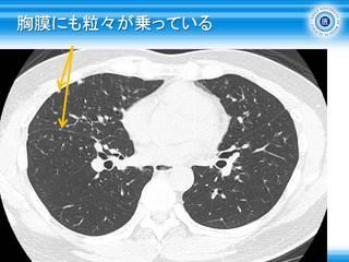 16胸膜にも粒々が乗っている.jpg
