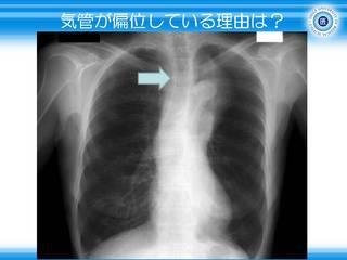 17気管が偏位している理由は.JPG