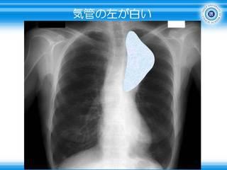 18気管の左が白い.JPG