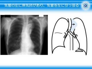 19気管の左に無気肺があり、気管を左に引っ張る.JPG