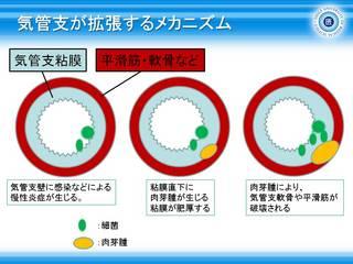 1気管支が拡張するメカニズム.JPG