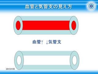 1血管と気管支の見え方.JPG