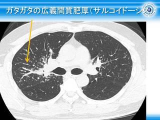 20ガタガタの広義間質肥厚(サルコイドーシス).jpg