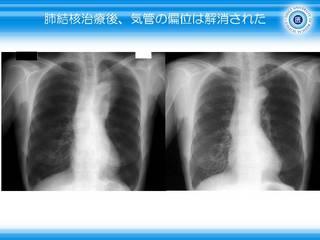20肺結核治療後、気管の偏位は解消.JPG