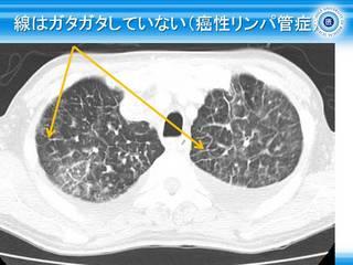 21線はガタガタしていない(癌性リンパ管症).jpg
