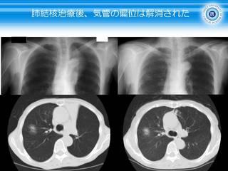 21肺結核治療後、気管の偏位は解消.JPG