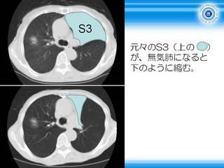 22元々のS3が無気肺になって縮む.JPG