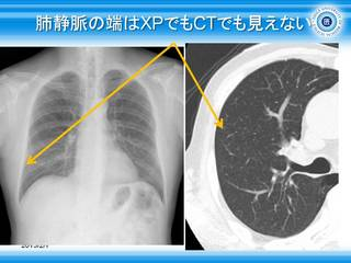 23肺静脈の端はXPでもCTでも見えない.jpg
