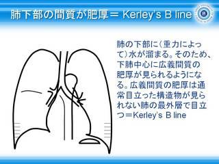 25肺下部の間質が肥厚= Kerley's B line.jpg