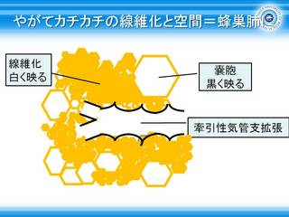 26やがてカチカチの線維化と空間=蜂巣肺に.jpg