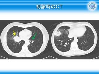 26リンパ節転移による腫瘤.JPG