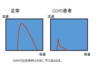 2本来のFV曲線.jpg