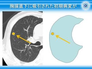 32胸膜直下に吸引された初期病変が.jpg