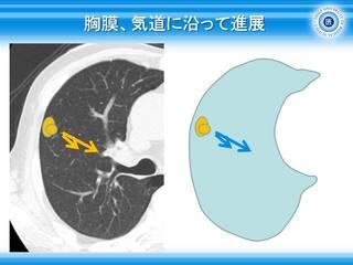 33胸膜、気道に沿って進展.jpg