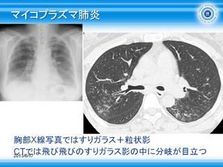 37マイコプラズマ肺炎.jpg