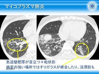 38マイコプラズマ肺炎.jpg
