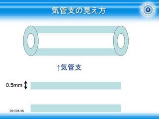 3気管支の見え方.JPG