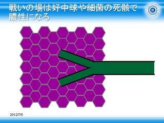 3浸潤影の模式図.JPG