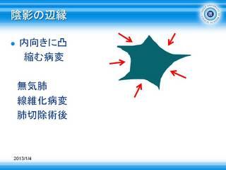 3無気肺のエリアは辺縁が内向きに凸.JPG
