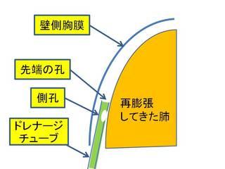 3膨張した肺が孔をふさぐ.JPG