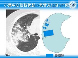 40小葉中心性粒状影〜気管支に沿って癒合.jpg