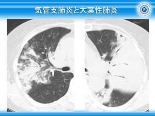 41気管支肺炎と大葉性肺炎.jpg