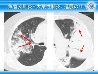 42気管支肺炎と大葉性肺炎、進展の仕方.jpg