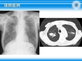 46珪肺症例.jpg