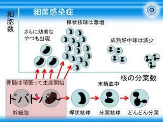 4細菌感染症における好中球の分画.JPG
