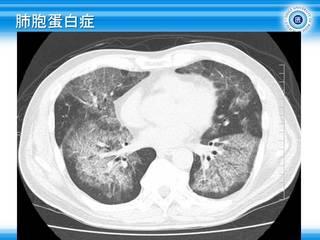 4肺胞蛋白症.JPG