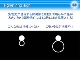 4signet ring sign.JPG