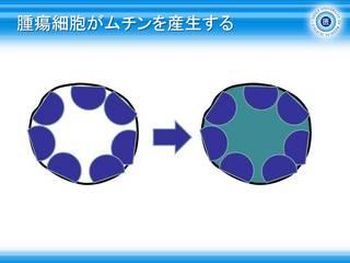 51腫瘍細胞がムチンを産生する.jpg