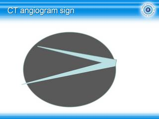 57CT-angiogram sign.jpg