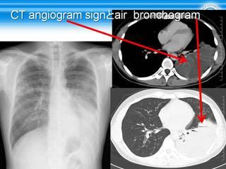 59CT angiogram signとair  bronchogram.jpg