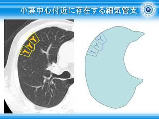 5小葉中心付近に存在する細気管支.JPG