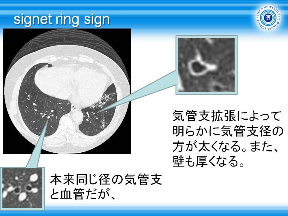 胸部CT道場43・気管支拡張像2・signet ring signとは: やさしイイ呼吸 ...