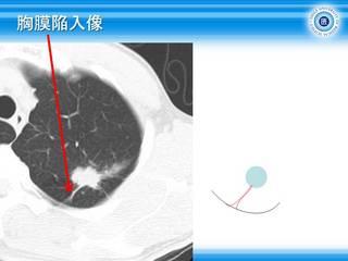 64胸膜陥入像.jpg