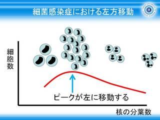 6細菌感染症における好中球の分画グラフ_左方移動.JPG