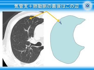 7気管支+肺動脈の最後はこの辺.jpg