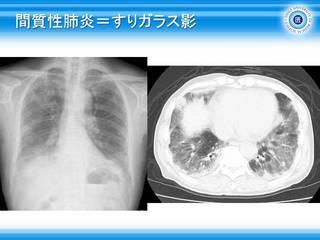 8間質性肺炎=すりガラス影.JPG